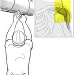 Random image: shoulder bursa