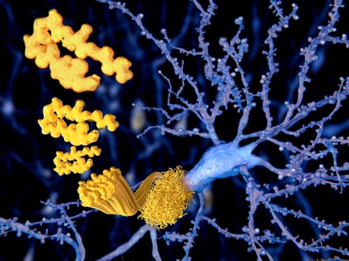 Alzheimers-neurons-plaques-tangles.jpg 2000 x 1500