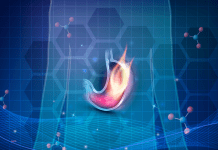 GERD Concept stomach on fire blue background 1538 x 1254