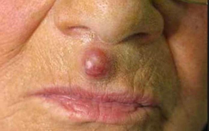 Merkel cell carcinoma from Am Acad Derm 738 x 462