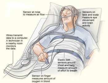 sleep studies for insomnia
