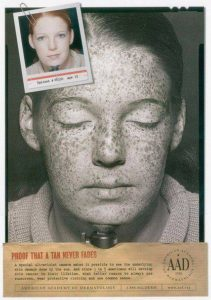 sun damage 1938 American Academy of Dermatology, Travel Hat Information, www.theeducationaltourist.com