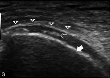 Yes, You CAN See Gout on Ultrasound!