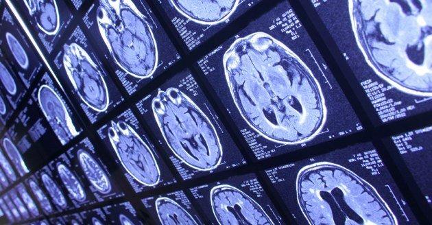 th21-630-mri-brain-scan-health-doctor-hospital-630w