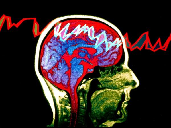 sn-epilepsyH