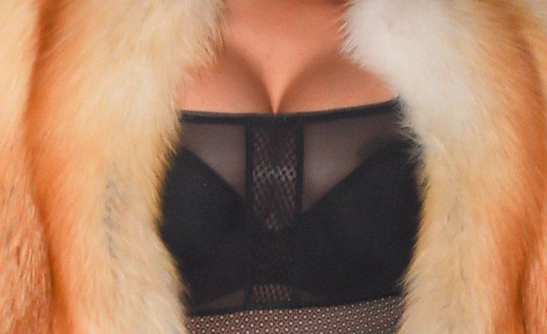 Nicki Minaj Nip Slip (2 New Photo)