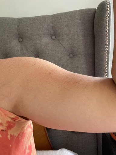 woman flexing her arm in a before shot.