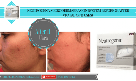 Neutrogena Microdermabrasion Review (After 11 uses)