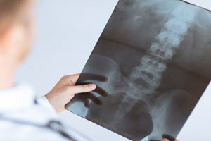 Doctor holding a spinal cord x-ray