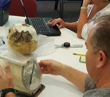 Aaron Judkins, PhD examining the Starchild Skull and measuring for cranial capacity