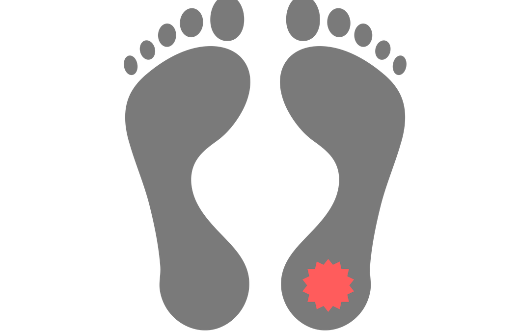 Is it Plantar Fasciitis?