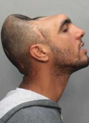 Man with only half a head