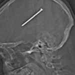 Man shoots his head with nail and doesn't realise