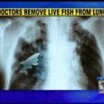 Fish found living in boy's lung