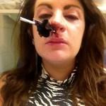 Woman impales her nose on umbrella