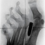 Bullet in Foot X Ray