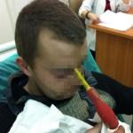 Man impales himself on screwdriver
