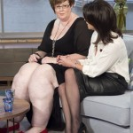 Woman with 10 stone legs