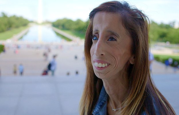 "The ""ugly woman"" who has become an inspiration"