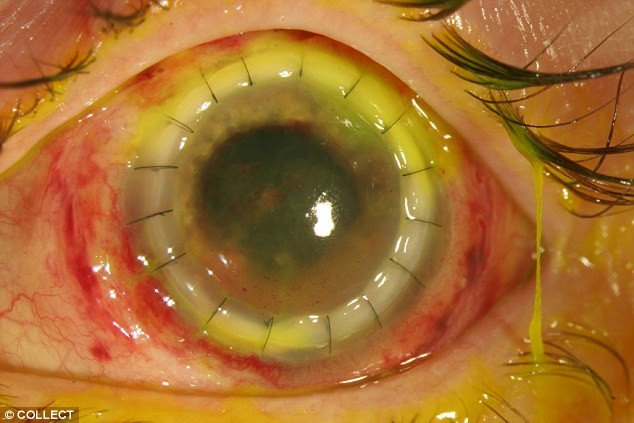 weird eye disease