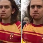Water Shoots Out of Hole Injured Rugby Players Chin (freaky video)