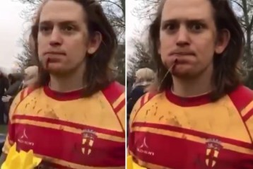 rugby-freaky-vdoe-injury-wtf