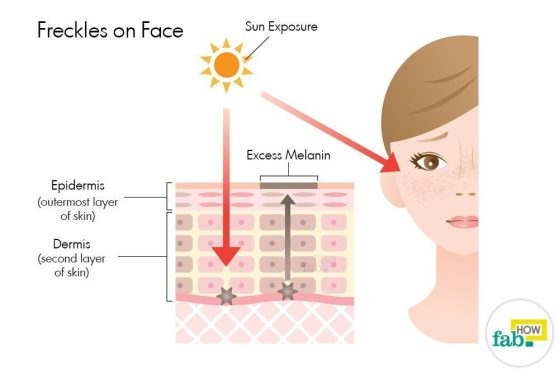Freckle Treatments