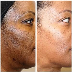 Lightening and brightening the skin