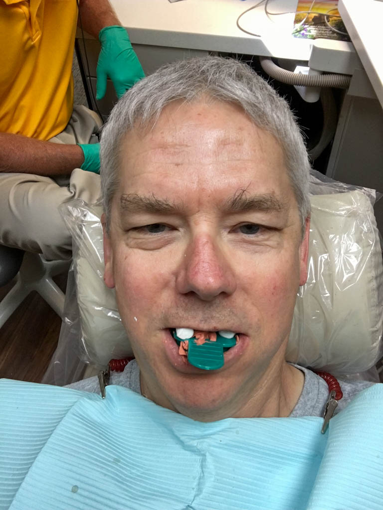 LOOKING AND FEELING MY VERY BEST In the Dentist Chair