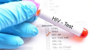 Karachi worst hit by HIV in Sindh with 67.2% cases
