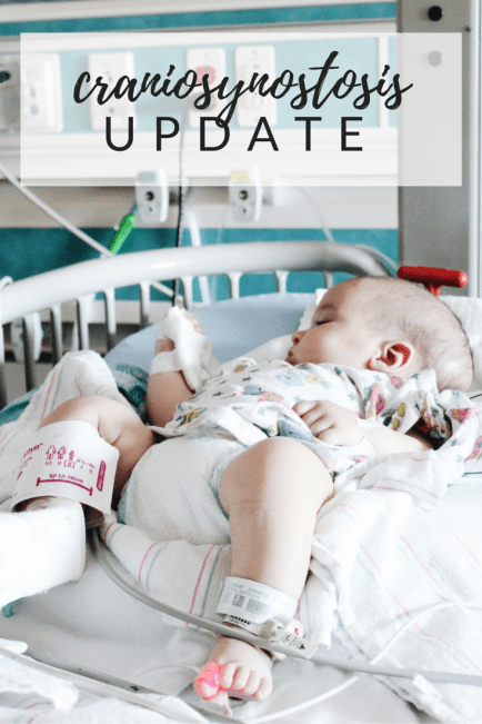 craniosynostosis journey - after surgery update