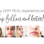 My VERY REAL experience with botox and fillers