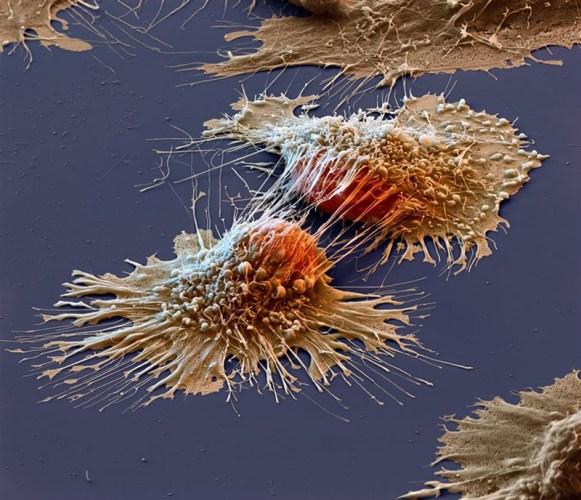 kanser hücreleri büyük hali