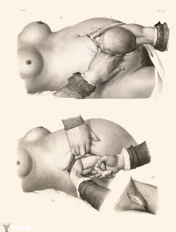 19. yydan cerrahi çizimler 6