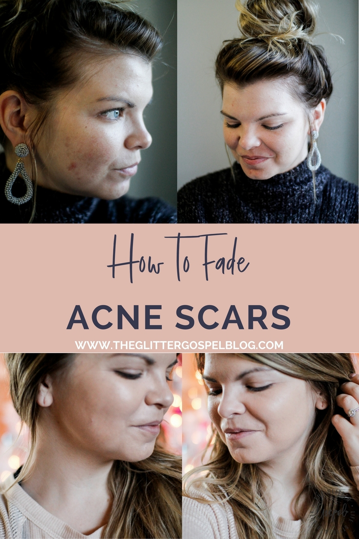 How to fade your acne scarring. Skincare, Acne treatment, microderm, PMD, the glitter gospel, winter skin care