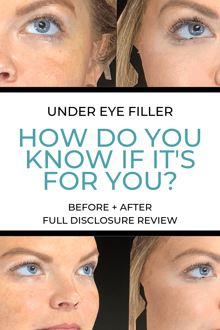 The Glitter Gospel shares her experience with under eye filler. The Lucas Center, Knoxville TN, Knoxville Plastic Surgery, Knoxville Blogger, Juvederm,