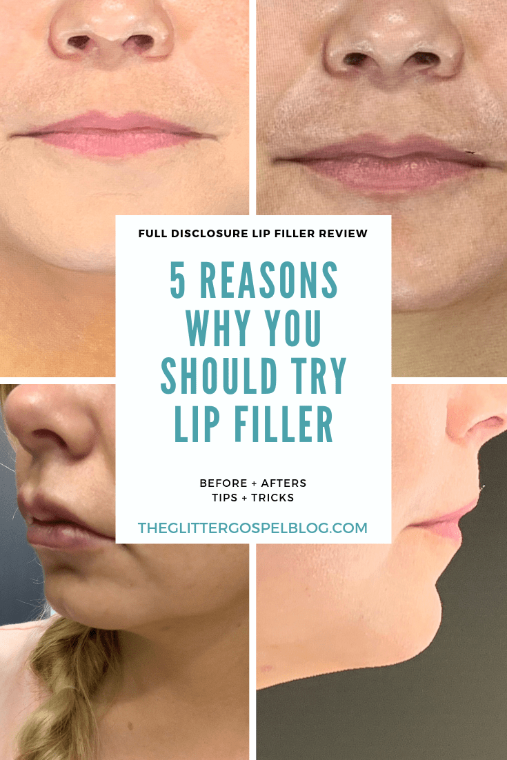 Popular Tennessee Blogger Lacey Douthat of The Glitter Gospel shares her experience with getting lip filler and tips if you want to try it too. Lip Filler, Injectables, Cosmetic Procedure, Plastic Surgery, Beauty Regimen, Beauty over 30