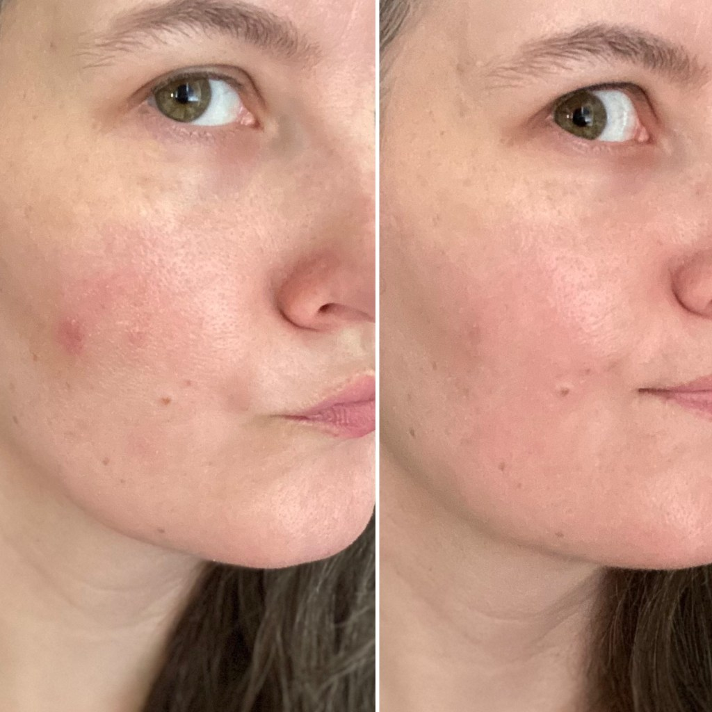 Before and after pic of blemish