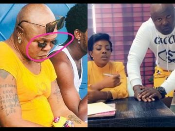 Slay Queens With Long Fake Nails Are Welcomed At GhOne TV But Not Men With Bleached Skin – Bukom Banku Kicked Out Of GhOne TV