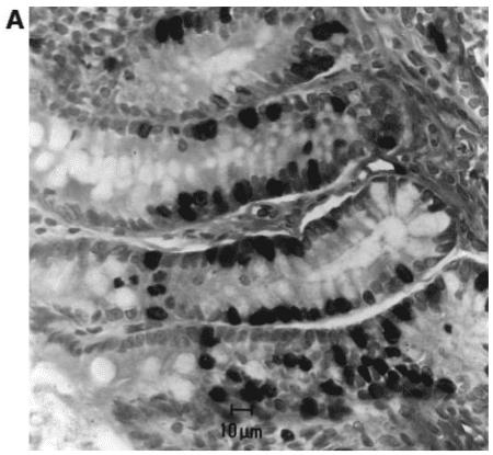 益生菌抑制癌細胞