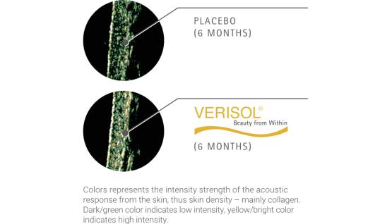 膠原蛋白改善大腿橘皮