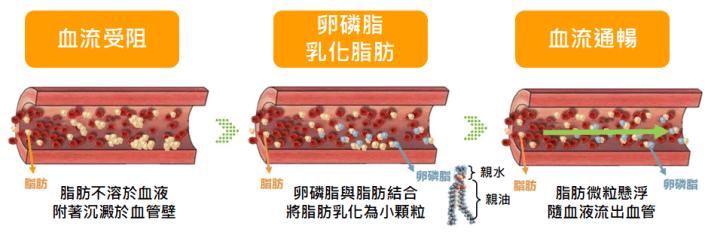 卵磷脂功效:預防動脈硬化
