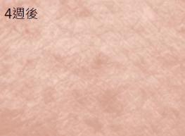 神經醯胺功效:改善皮膚鱗屑粗糙