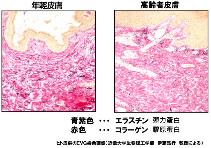 彈力胜肽對抗皮膚老化