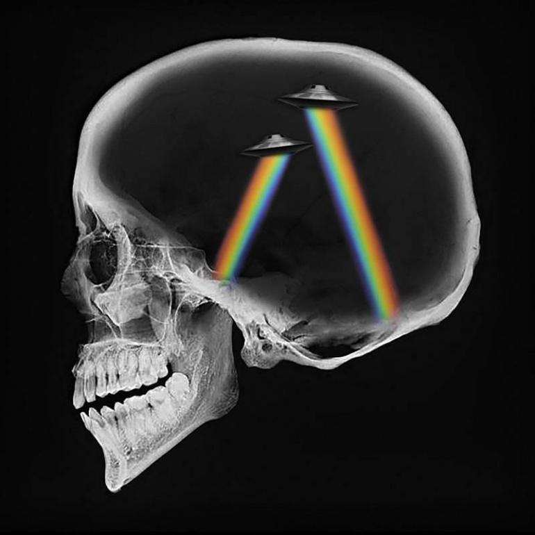 Axwell and Ingrosso Dreamer Remix Matisse and Sadko Klahr Alpha 9