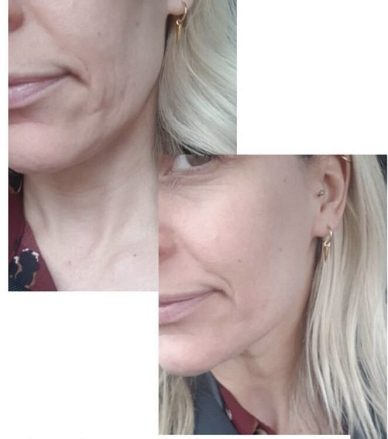 DMK Enzyme Treatment Skin Studios. Before and after.
