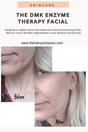 DMK Enzyme Therapy Treatment at the Skin Studios in Hove