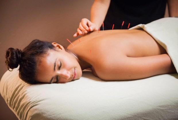5 formas saludables de manejar el enojo sin ejercicio - acupuntura-1024x694