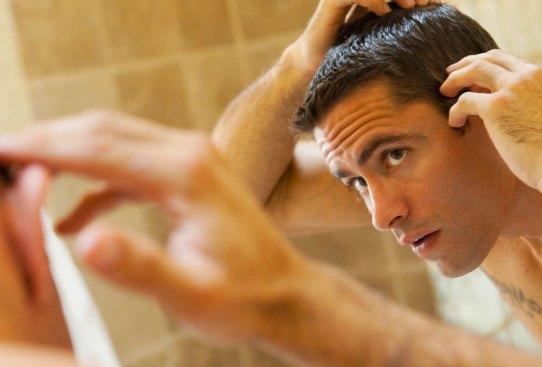 Estas son las posibles razones de la caída de tu pelo, ¿las conocías? - perder-pelo-5-300x203