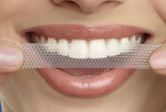 Conoce todo sobre los distintos tipos de blanqueamiento dental que existen - tipos-blanqueamiento-dental-4-300x203